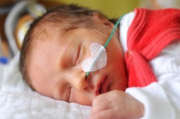 Newborn baby sleeping after receiving Cerebral Palsy Treatments