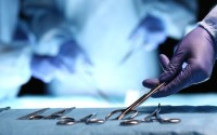 surgical negligence