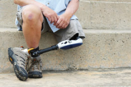 Loss of limb malpractice