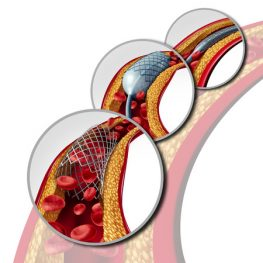 angioplasty and stent concept as a heart disease treatment symbol diagram with the stages of an implant procedure in an artery that has cholesterol plaque blockage being opened for increased blood flow as a 3d illustration.