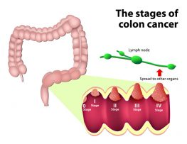 Failure to diagnose colon cancer